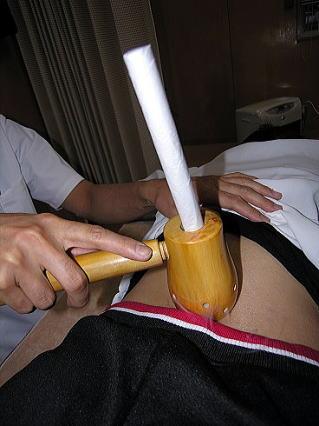 温灸器の棒灸をセットして使用した写真