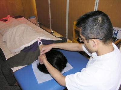14-1 肩・首の反応のあるツボに鍼をします