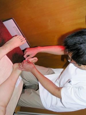 2 脾経の反応のあるツボに鍼をします