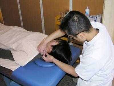 18-2 動きの悪い頸椎の動きをさらによくするために、首に鍼をします