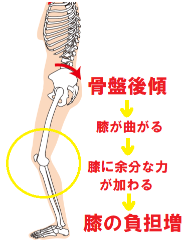 骨盤後傾は膝の負担増