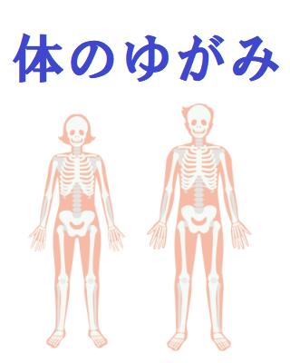 体のゆがみのイラスト
