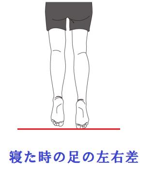 寝た時の足の左右差
