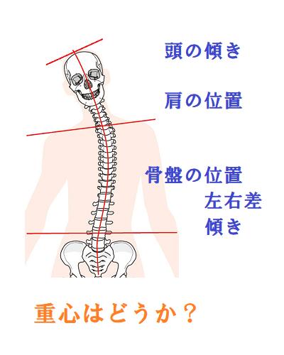 頭の傾き・肩の位置・骨盤の位置・左右差・傾きのイラスト