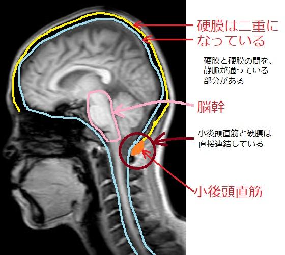 脳の硬膜の画像